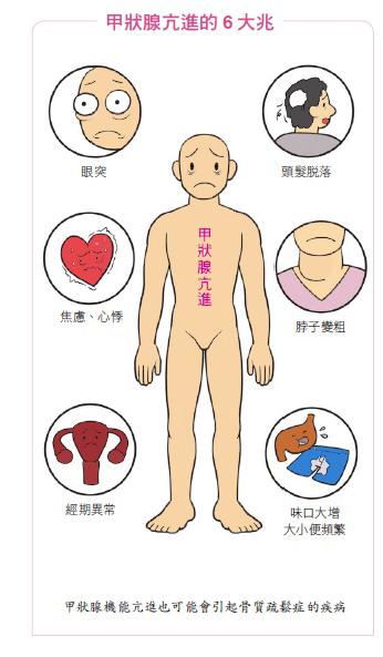 甲状腺 機能 亢進 症