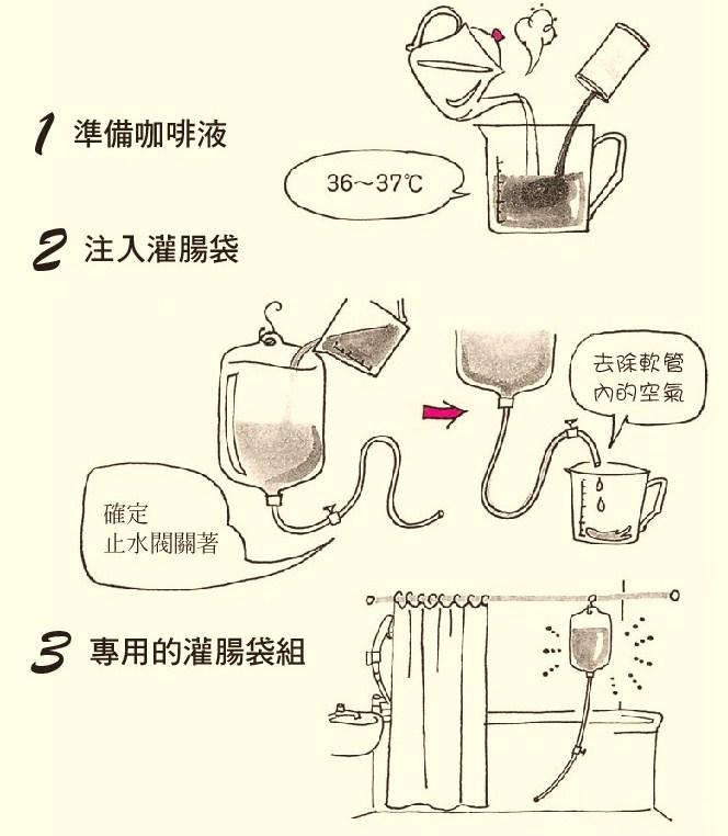 就能做新谷式咖啡灌肠!
